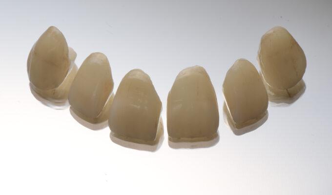 Successful Anterior Ceramics - WORKSHOP