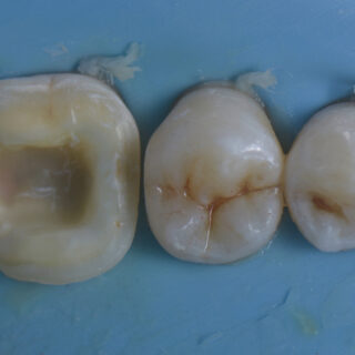 Immediate Dentine Sealing