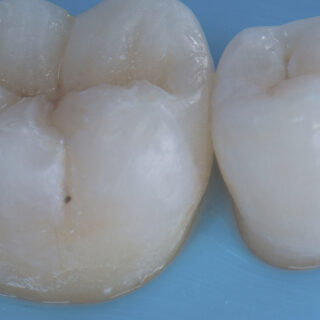 Porcelain WS 2 0 posterior 004
