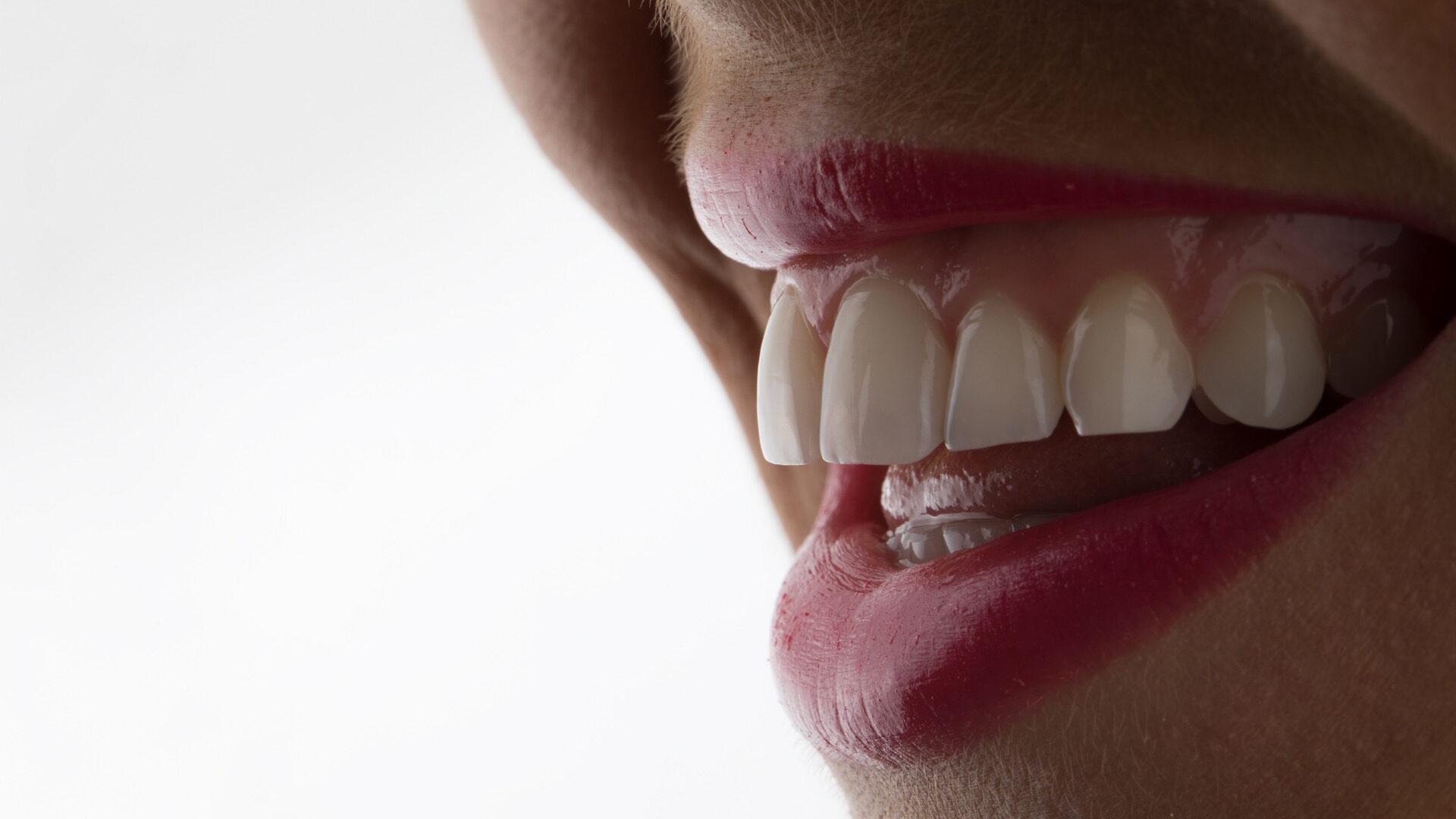 Dental photography essentials 2